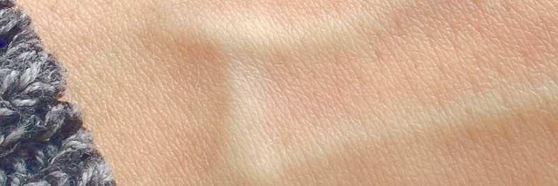 Vitamin A: Haut